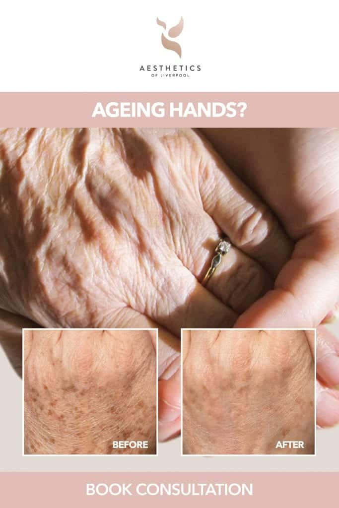 Treatment For Ageing Hands In Liverpool