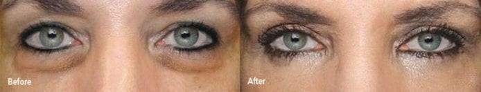 Eye Bag Removal before and after