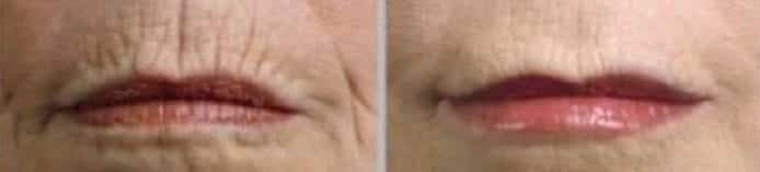 Lips Line Removal Treatment