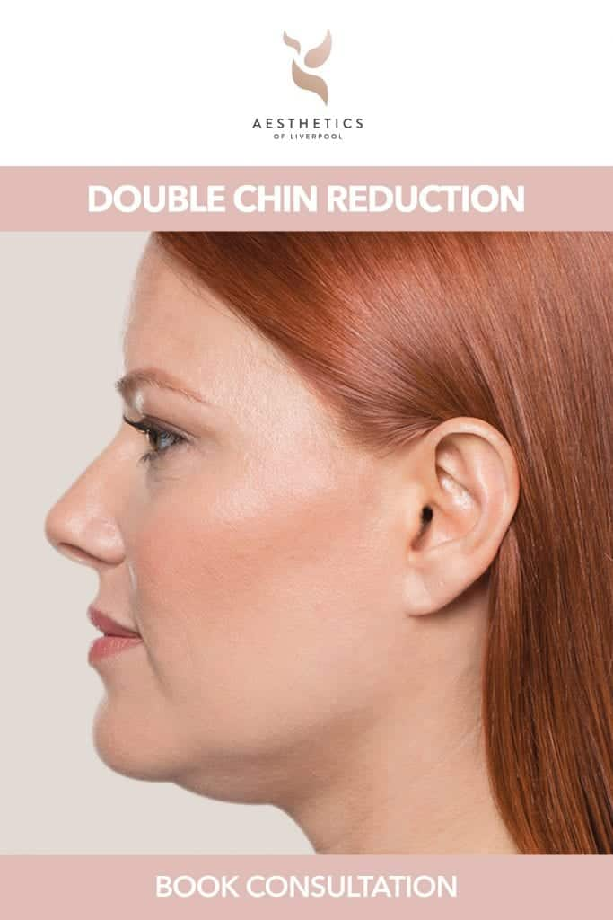 double chin removal treatment