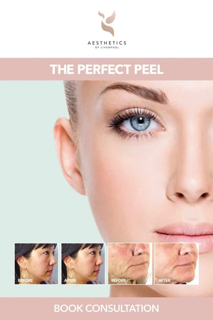 Perfect Peel at Aesthetics of Liverpool