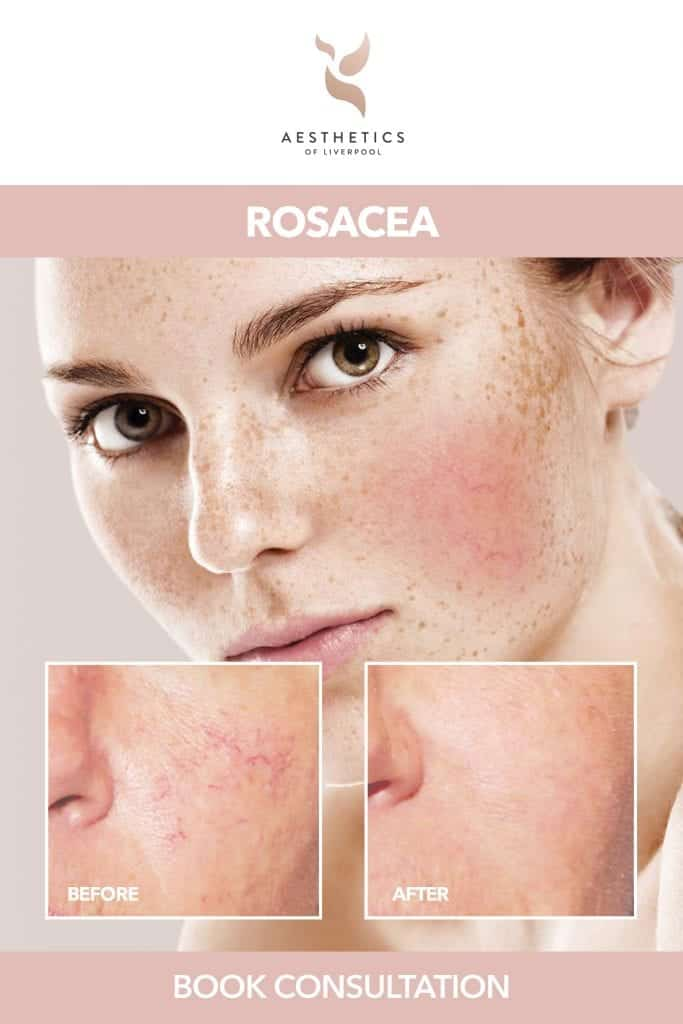 Rosacea Skin Condition Treatment