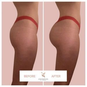 Buttock Augmentation B&A2