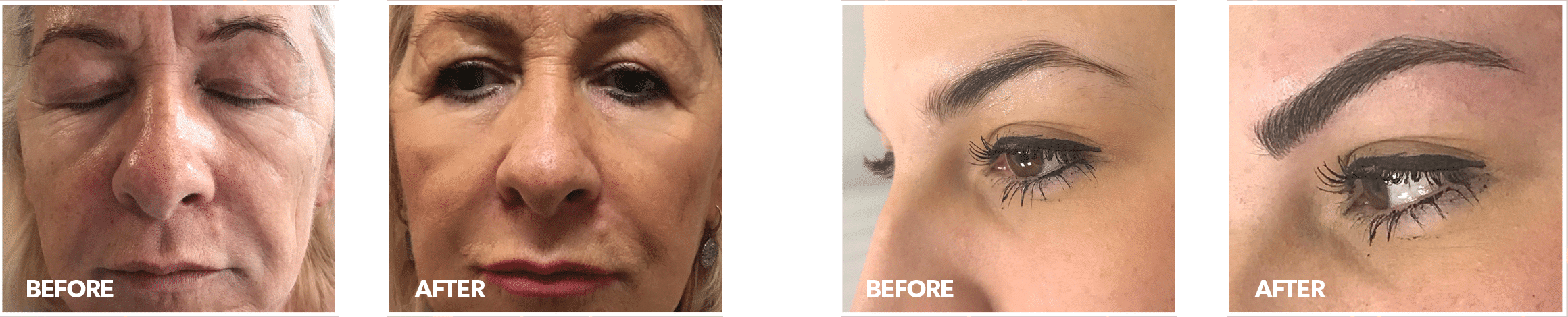 before and after photos of aesthetics treatments