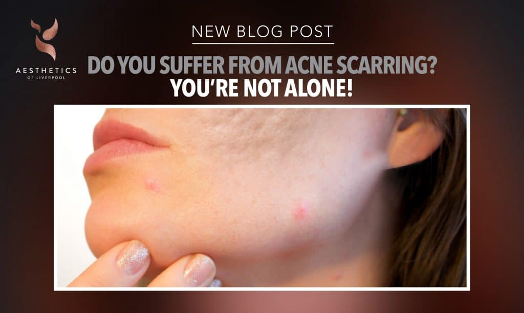 Acne Scarring Treatment in Liverpool