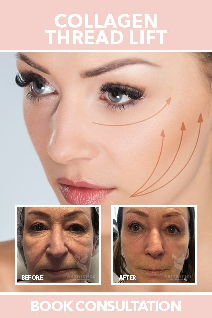 Collagen Thread Lift