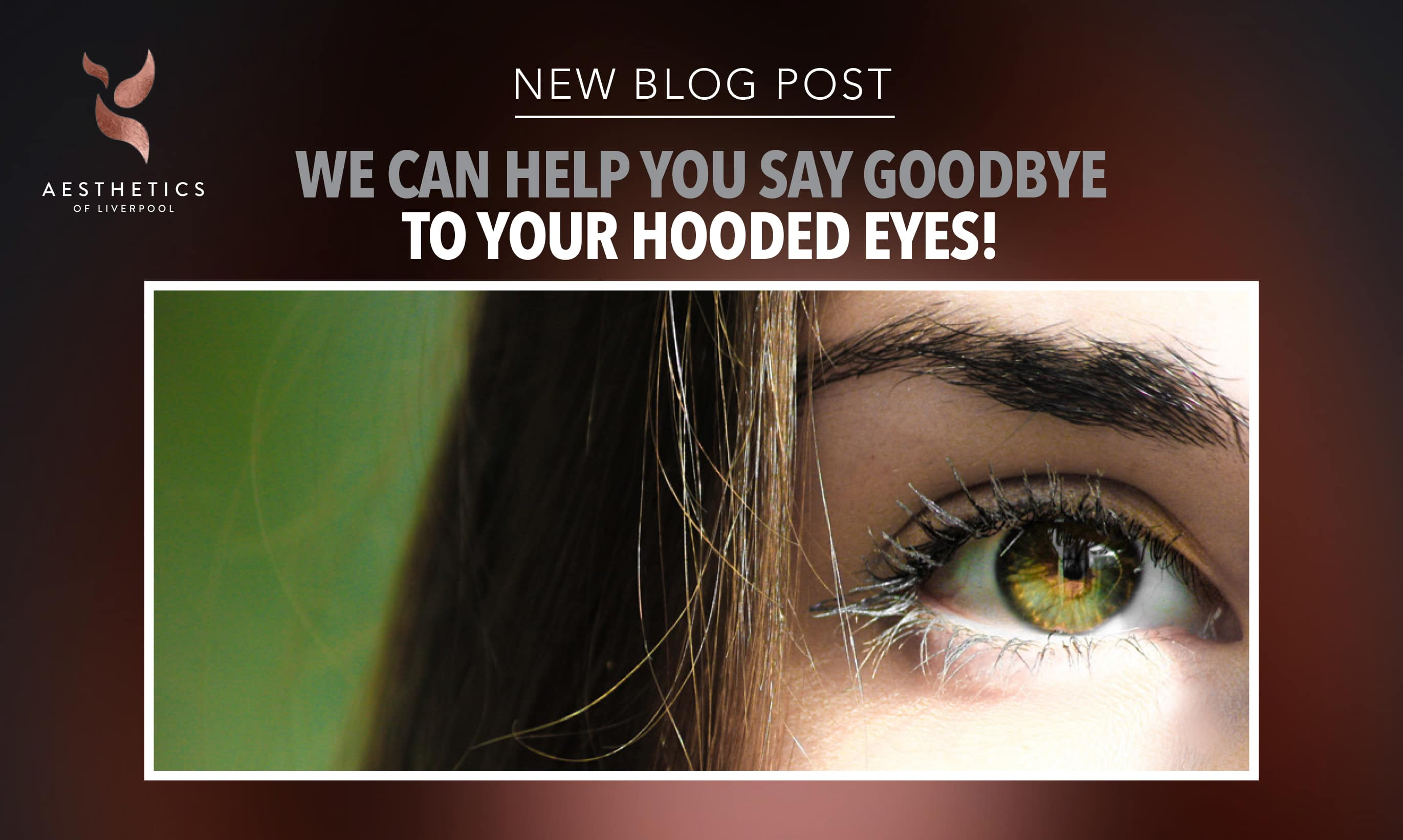 Hooded Eyes treatment in Liverpool