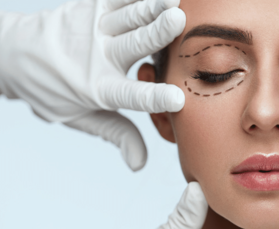 Woman having PLEXR treatment to remove bags under her eyes