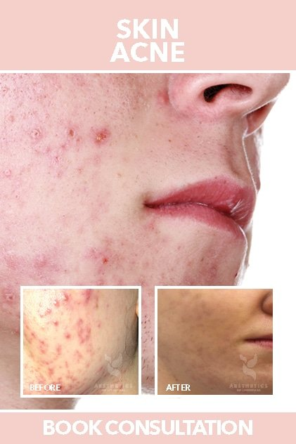 Skin Acne treatment