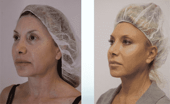 before and after of a woman who has undergone a thread lift liverpool