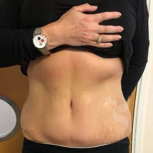 Fat Reduction Cavitation After