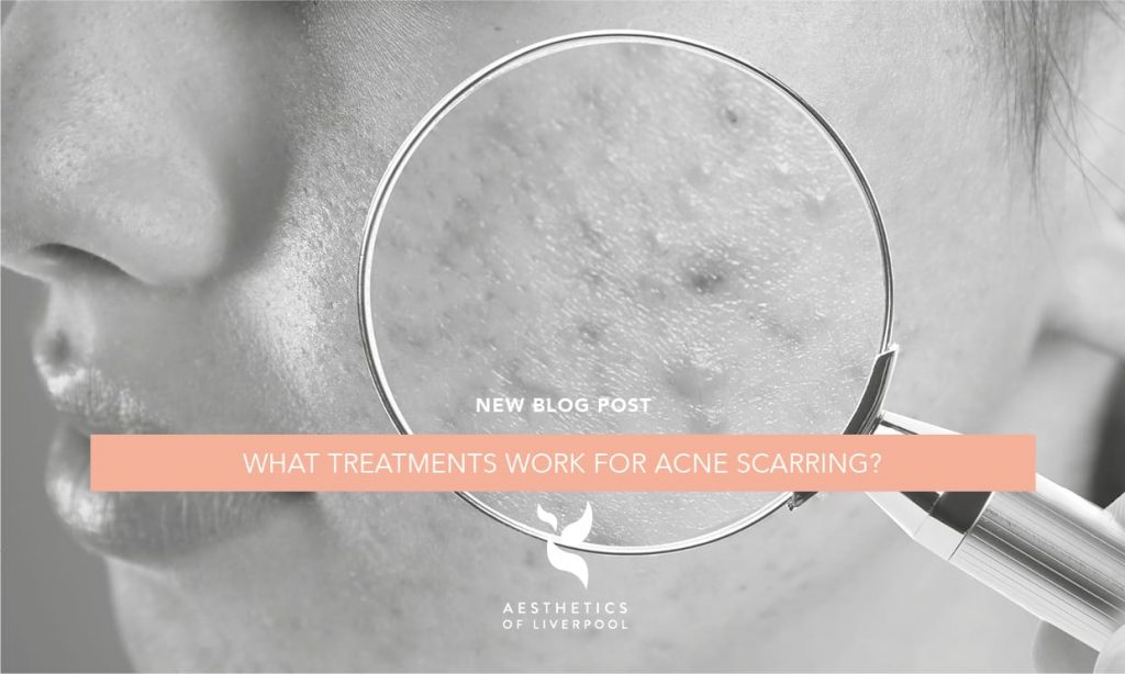 What Treatments Work For Acne Scarring?