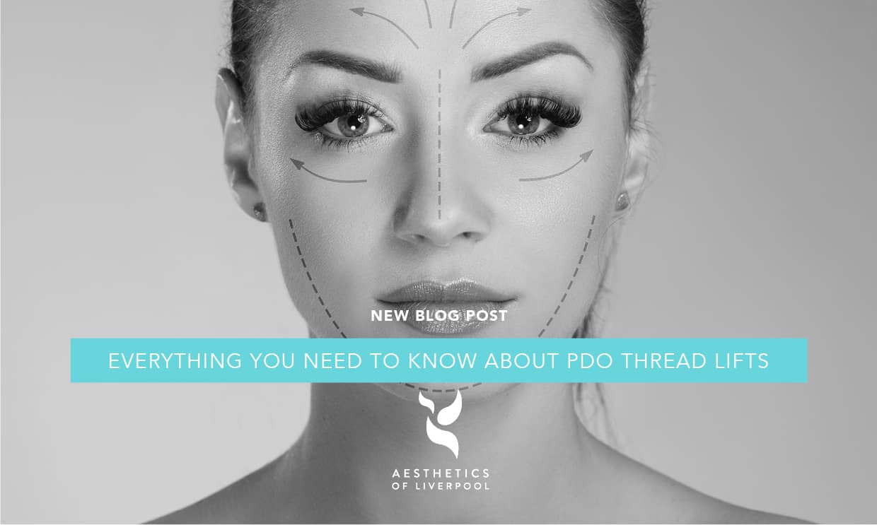 Everything you need to know about PDO Thread Lifts