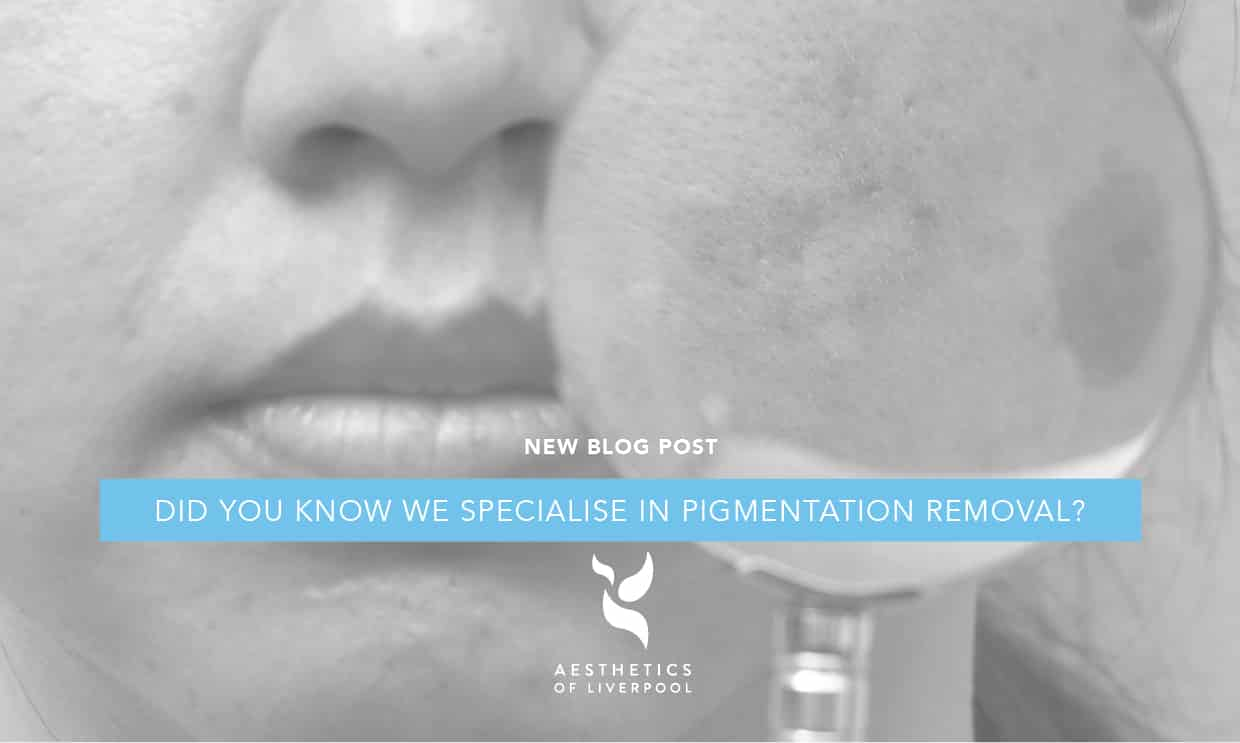 Did you know we specialise in Pigmentation Removal?