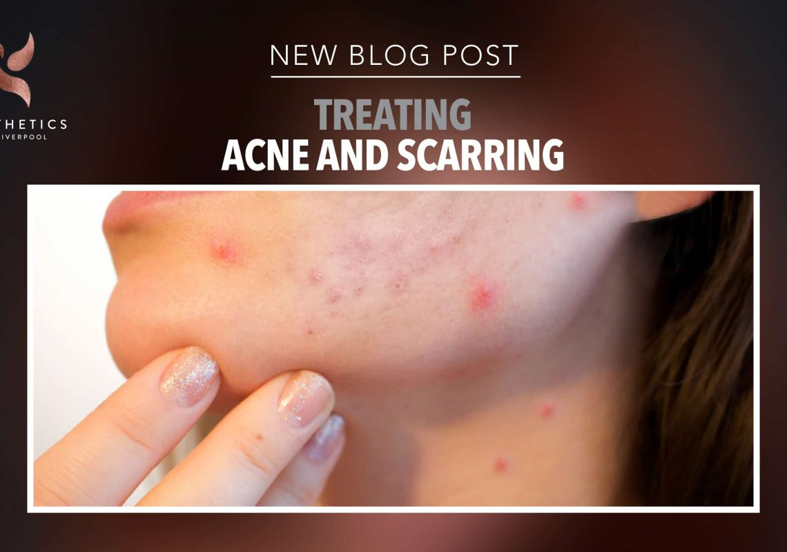 Article looking at how to treat acne and scarring