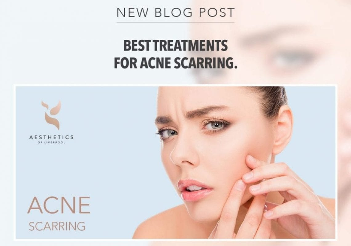 Here are just a few of the different treatments available that can help to reduce your acne scars.