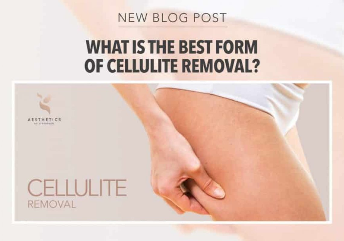 What is the best form of cellulite treatment in Liverpool?