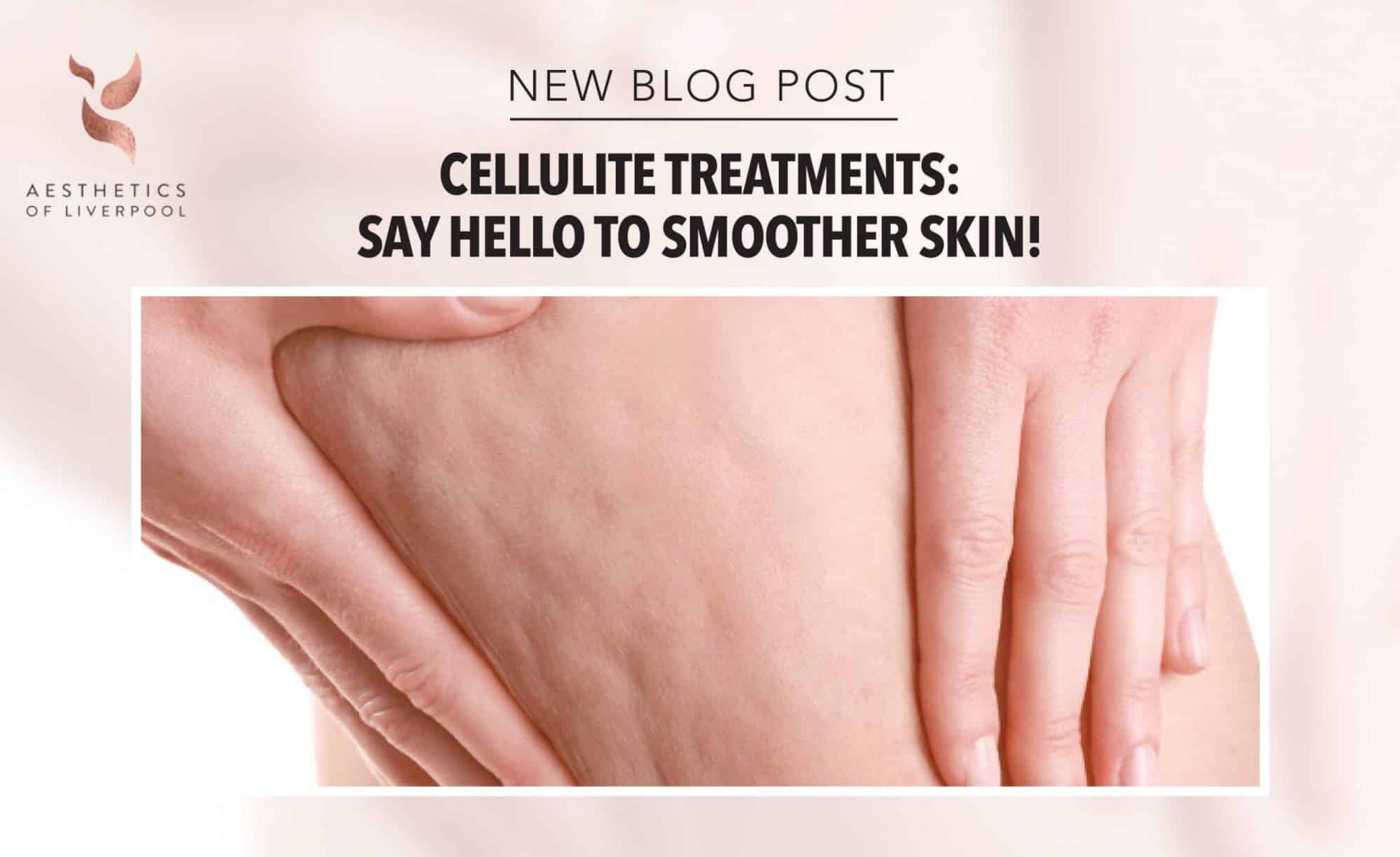 Cellulite Treatments: Say Hello To Smoother Skin!