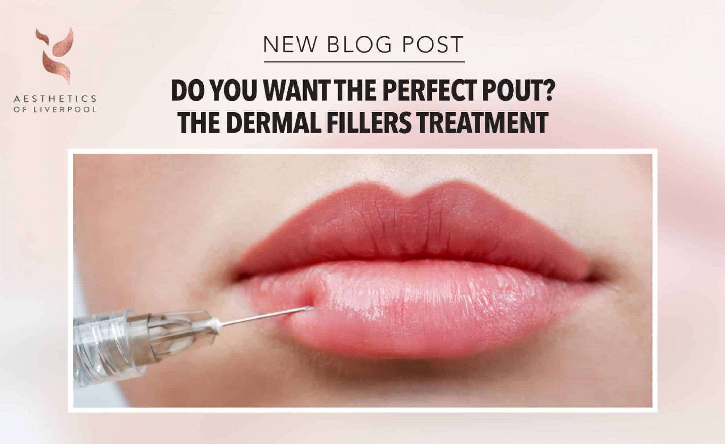 Do You Want the Perfect Pout? The Dermal Fillers Treatment