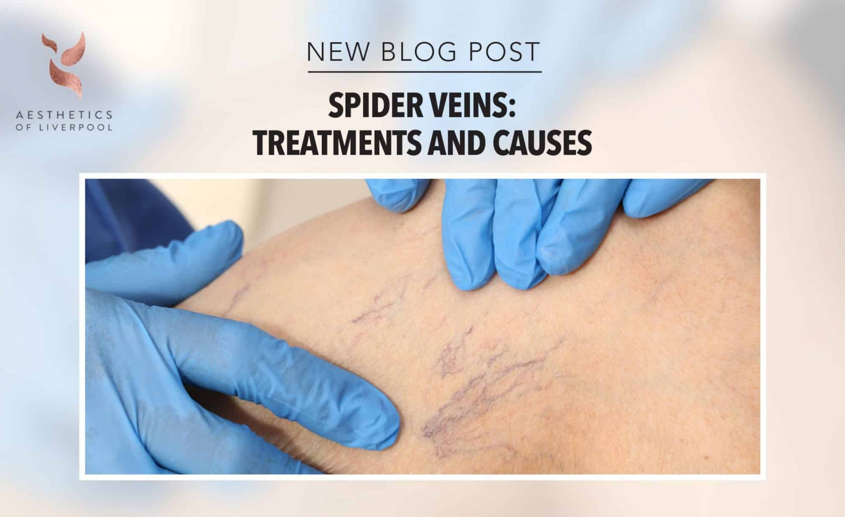Spider Veins: Treatments and Causes