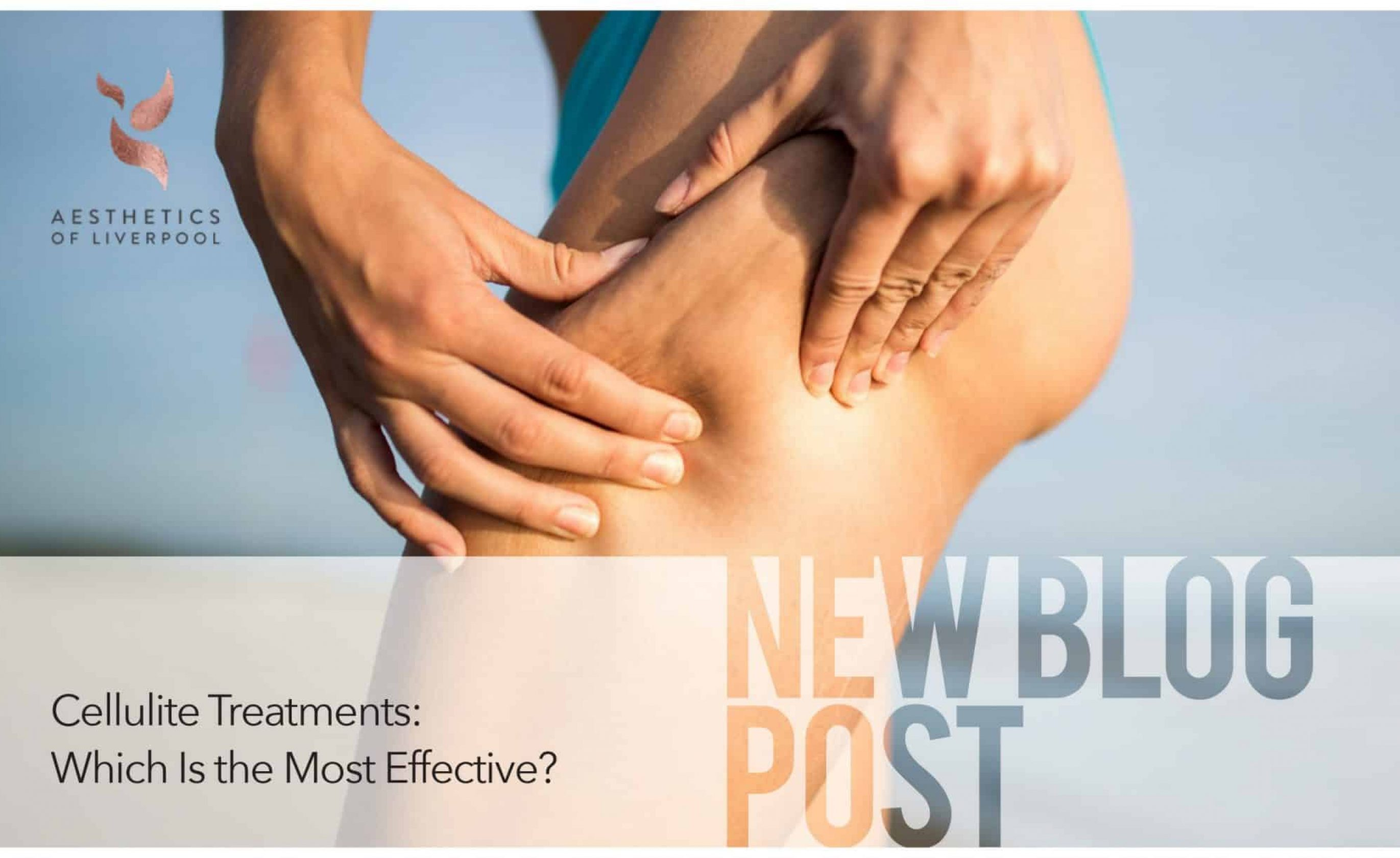 Cellulite Treatments: Which Is The Most Effective?