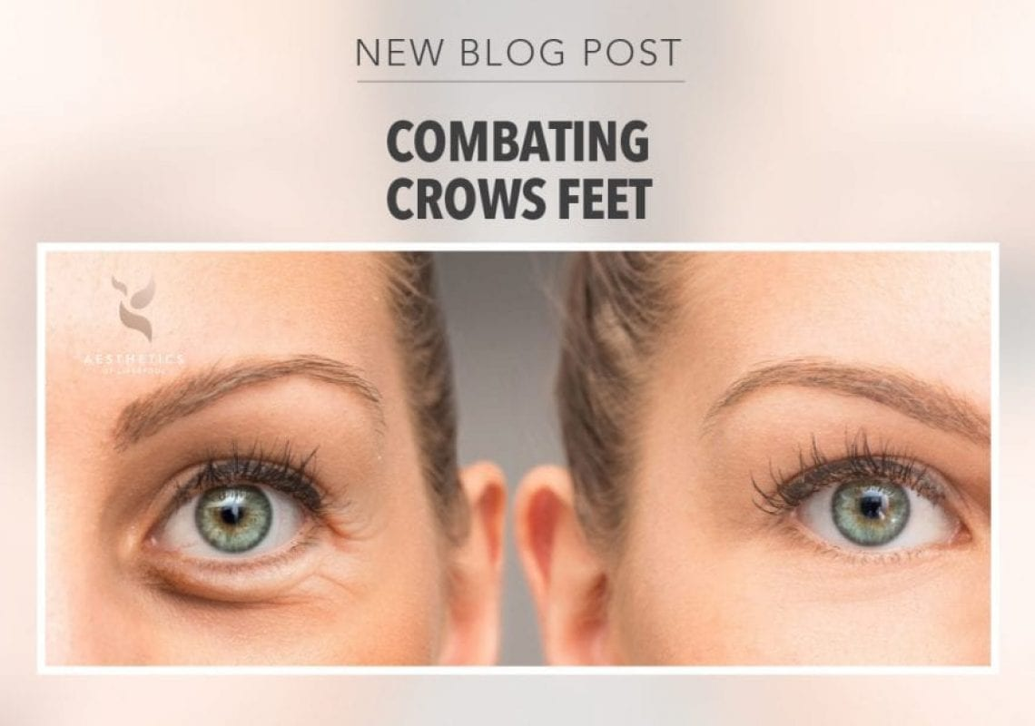 Crow's Feet before and after