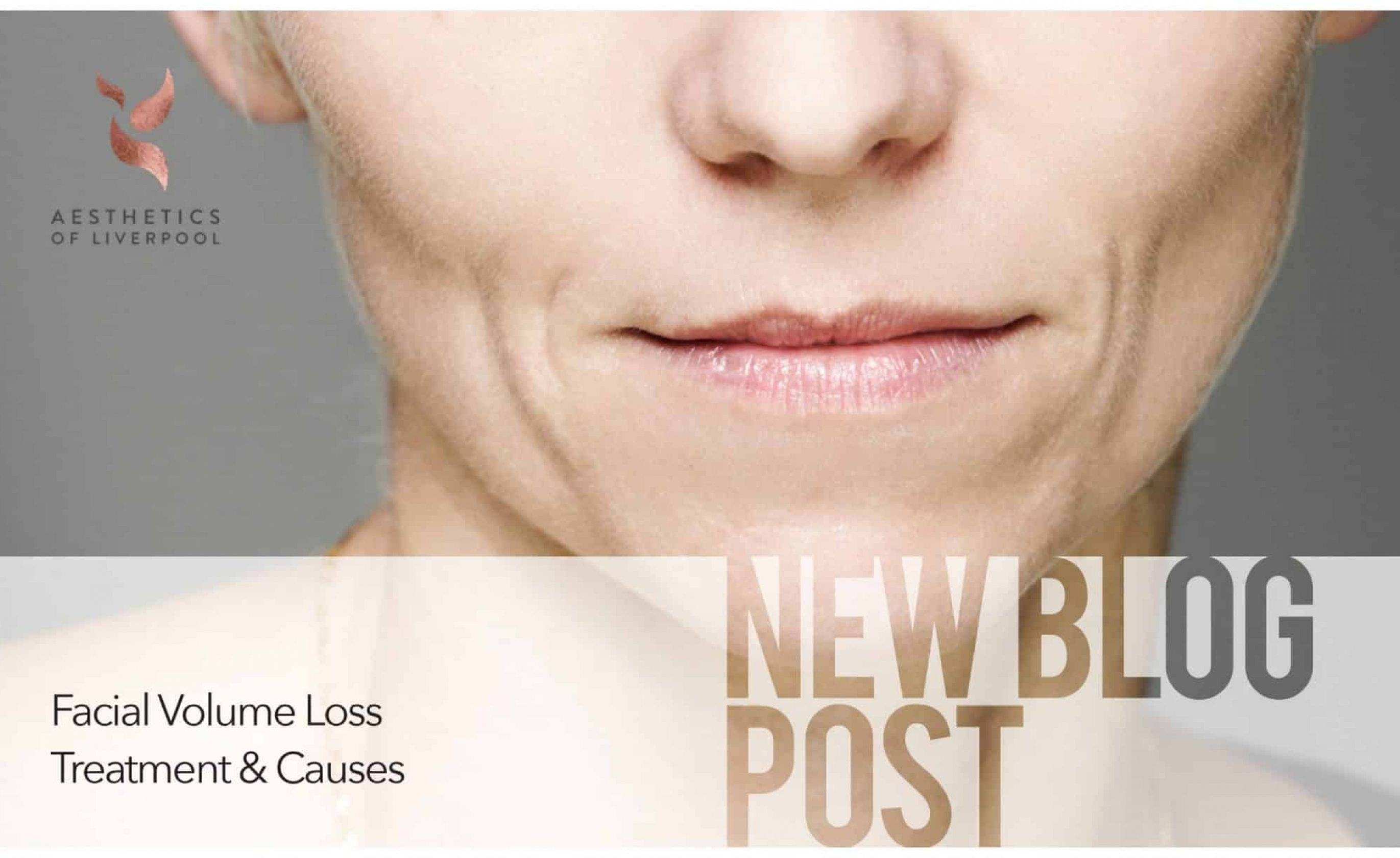 Facial Volume Loss Treatments and Causes