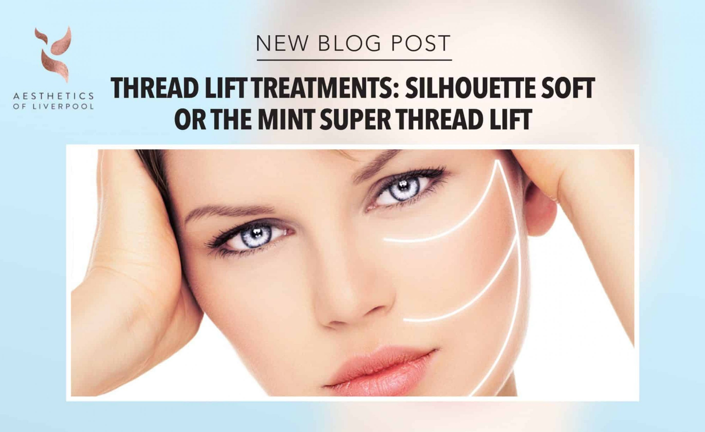 Silhouette Soft Or The MINT Super Thread Lift