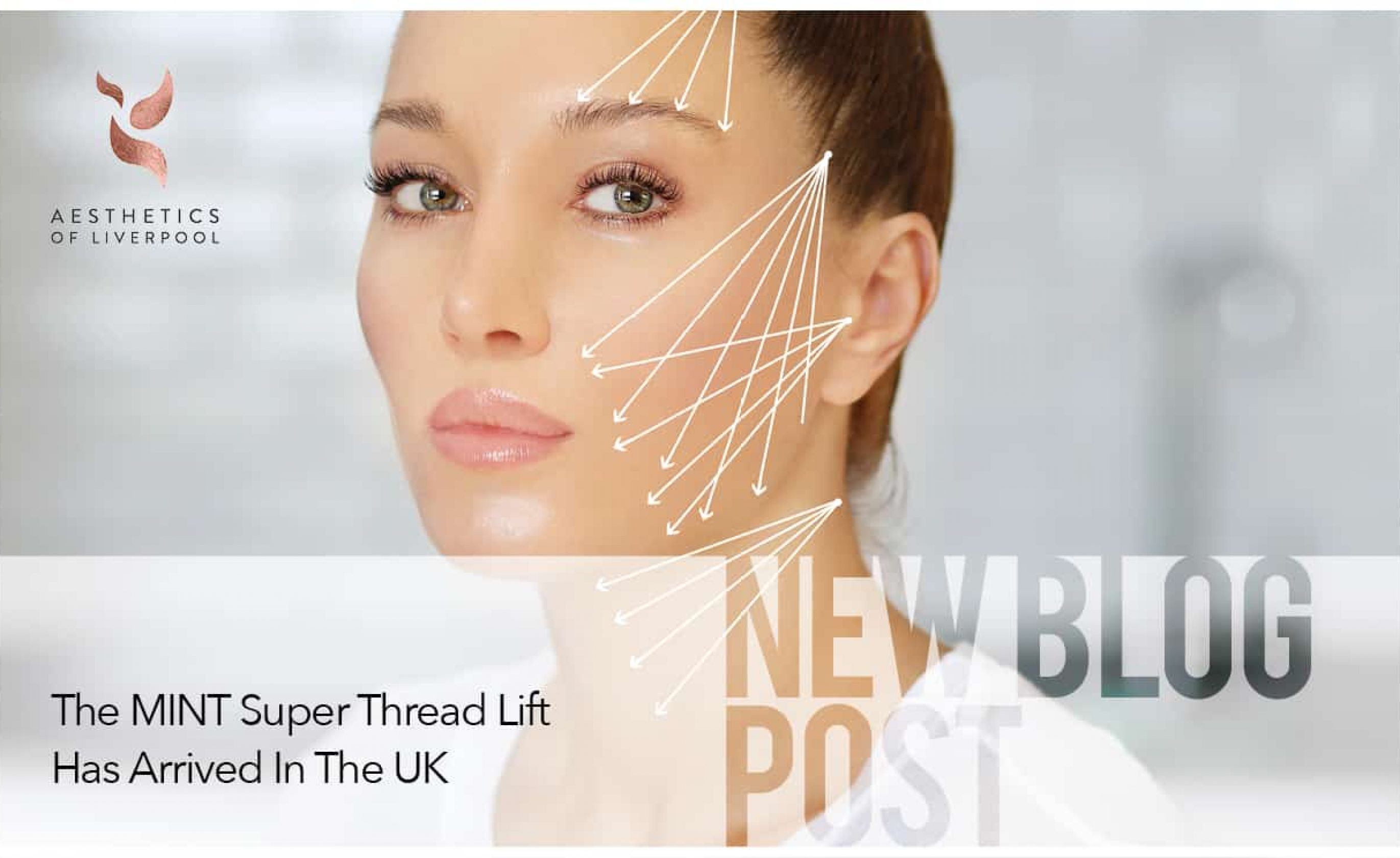 The MINT Super Thread Lift Has Arrived In The UK
