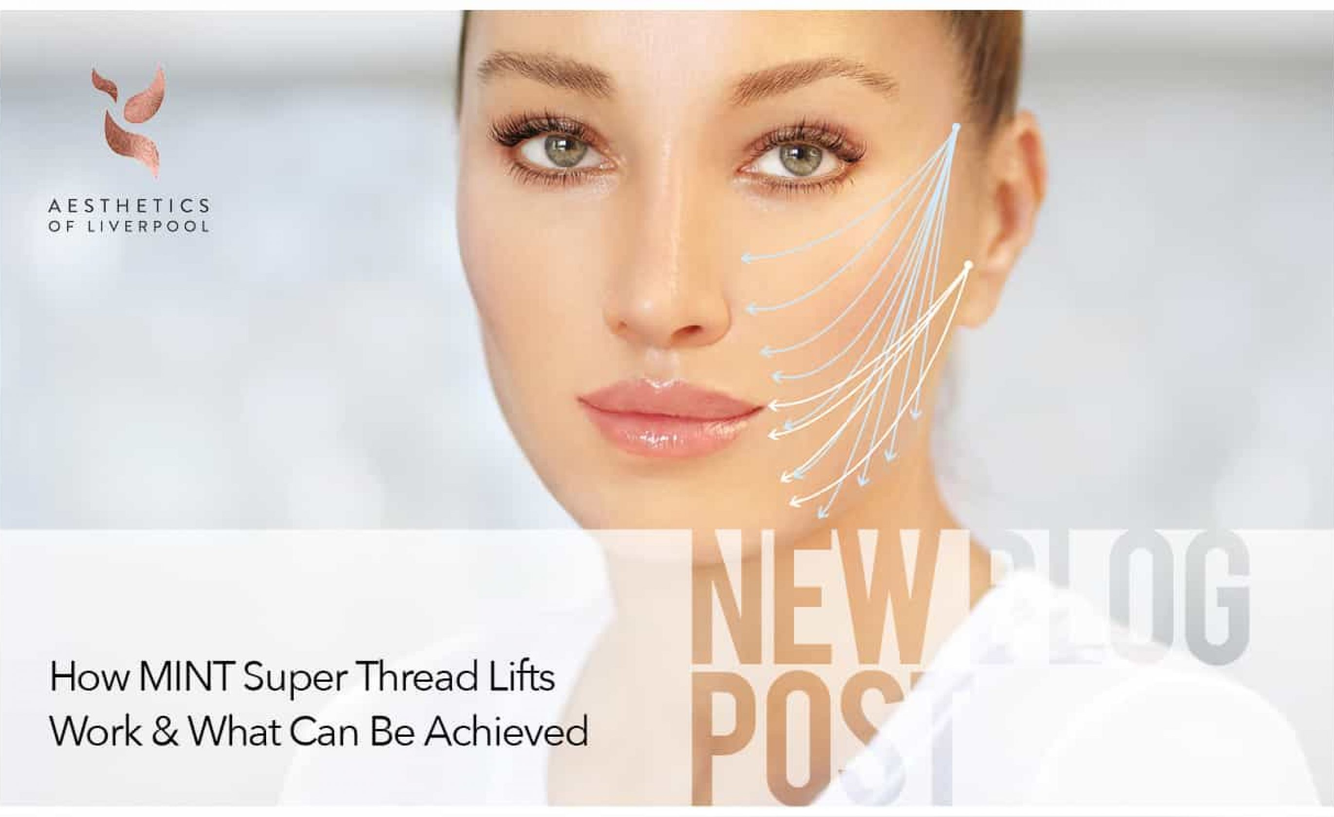How MINT Super Thread Lifts Work & What Can Be Achieved