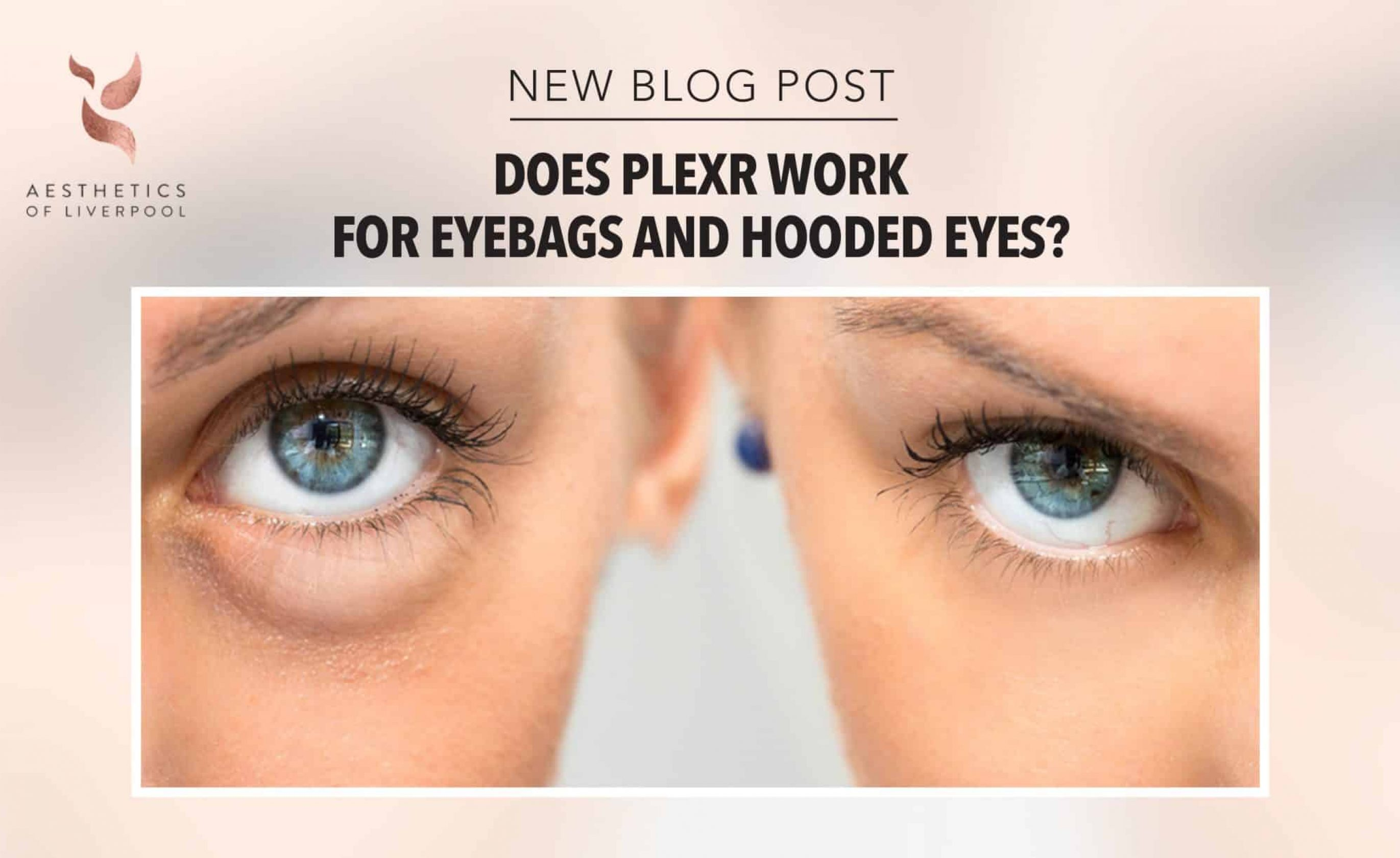 Does Plexr Work for Eyebags and Hooded Eyes?