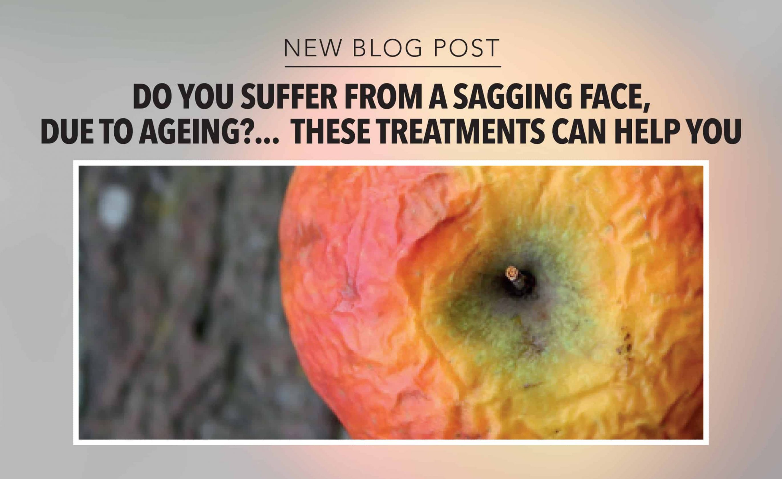 Do you suffer from a sagging face due to ageing?