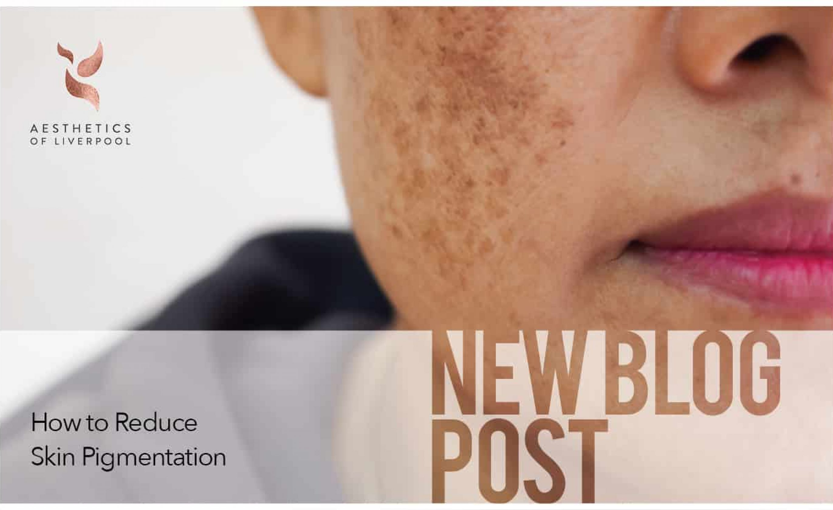 How to Reduce Skin Pigmentation