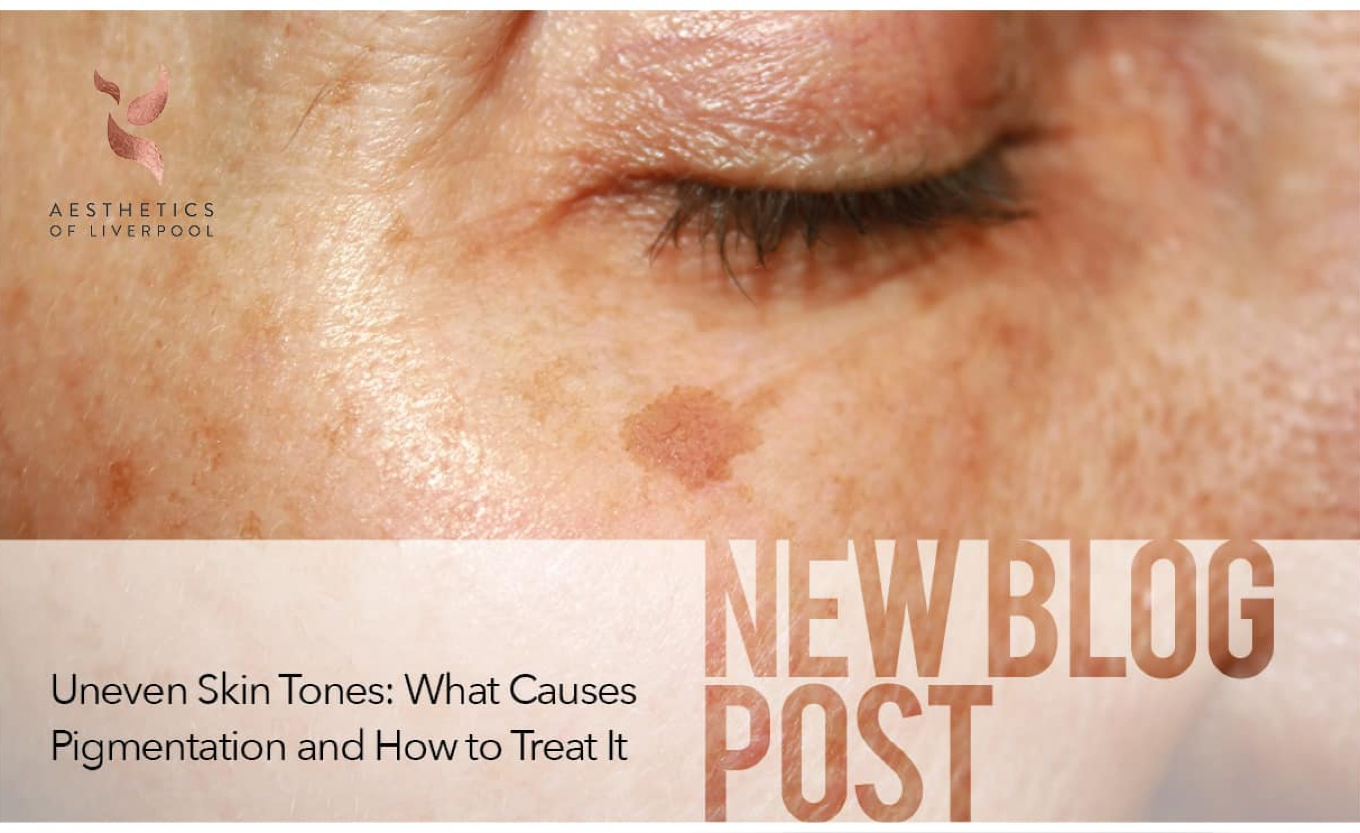 Uneven Skin Tones: What Causes Pigmentation and How to Treat It