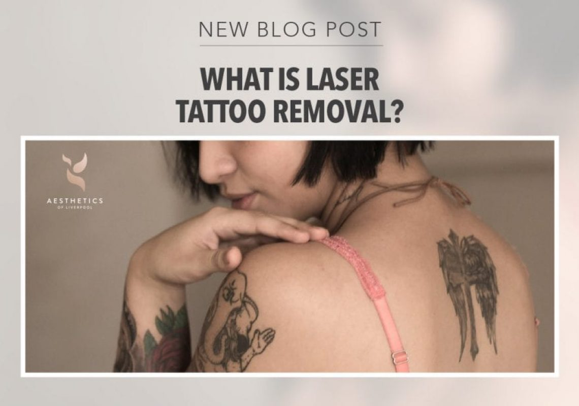 Tattoo Removal Blog