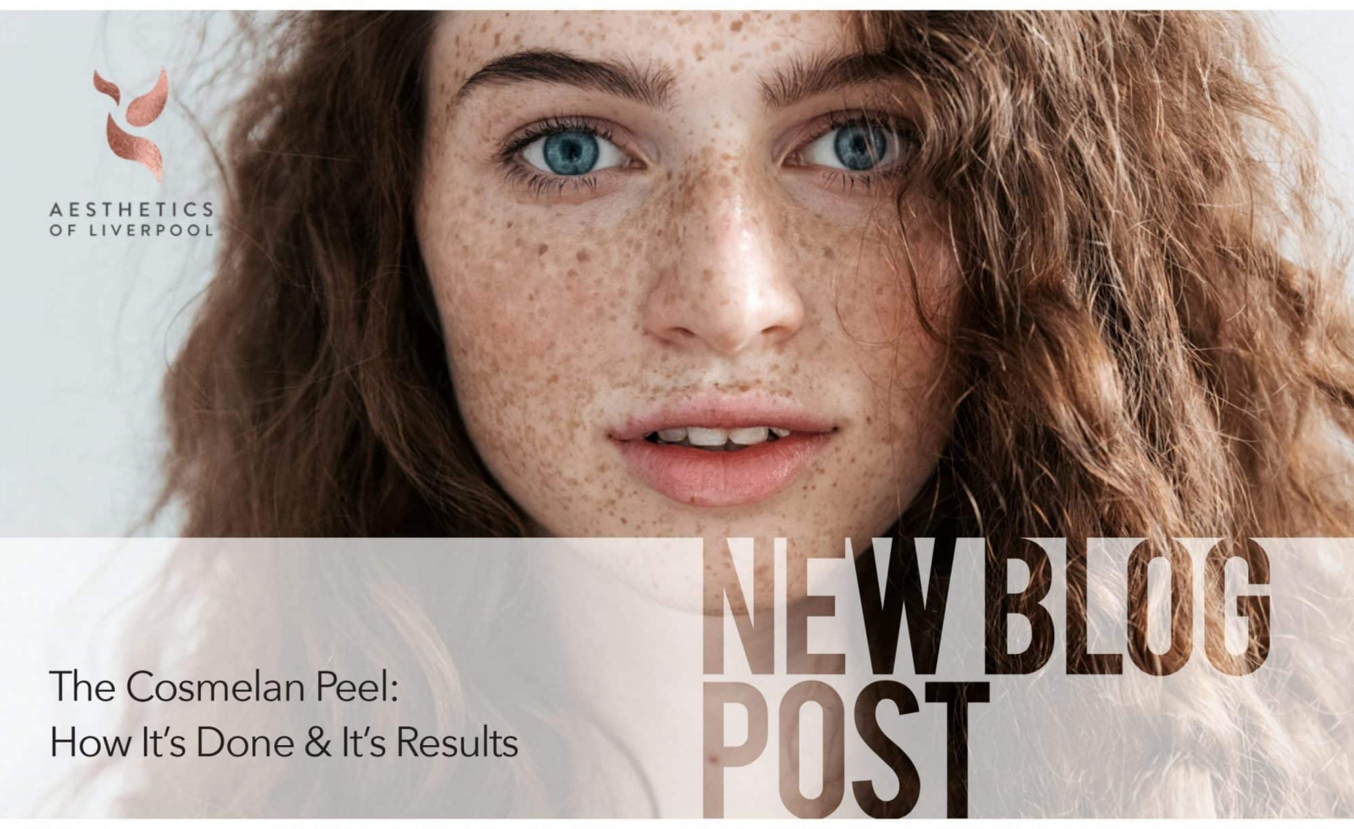 The Cosmelan Peel: How It's Done and It's Results