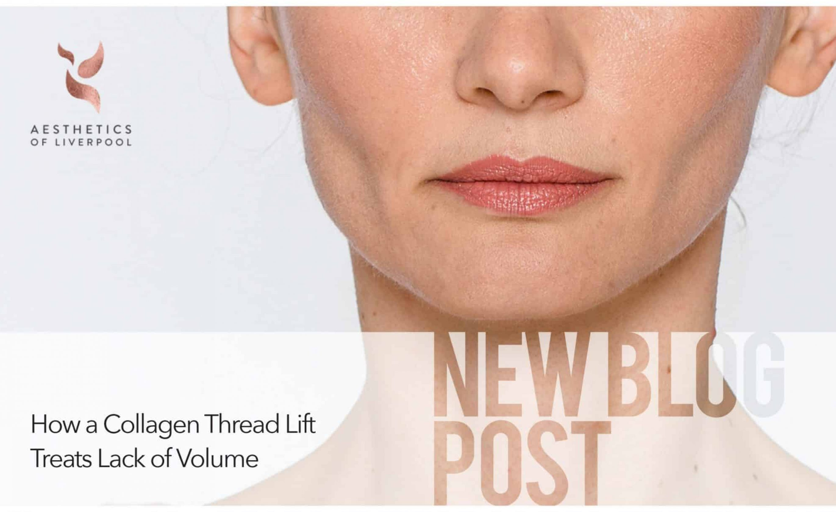 How A Collagen Thread Lift Treats Lack of Volume